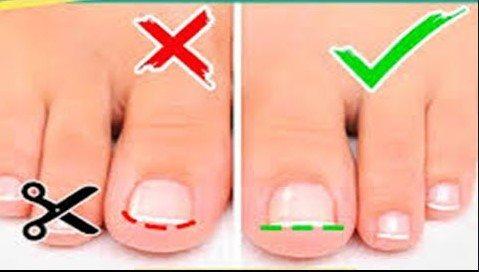 corte correcto de las uñas del pie