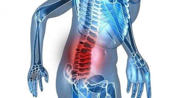 lumbalgia o dolor lumbar