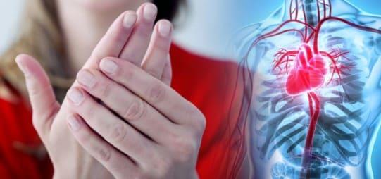 soluciones a las manos frias