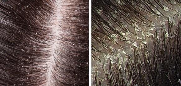 diferentes tipo de caspa en el cuero cabelludo