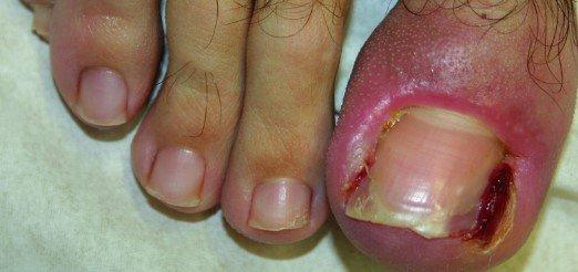 soluciones a las uñas encarnadas
