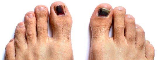 uñas negras provocadas por trauma